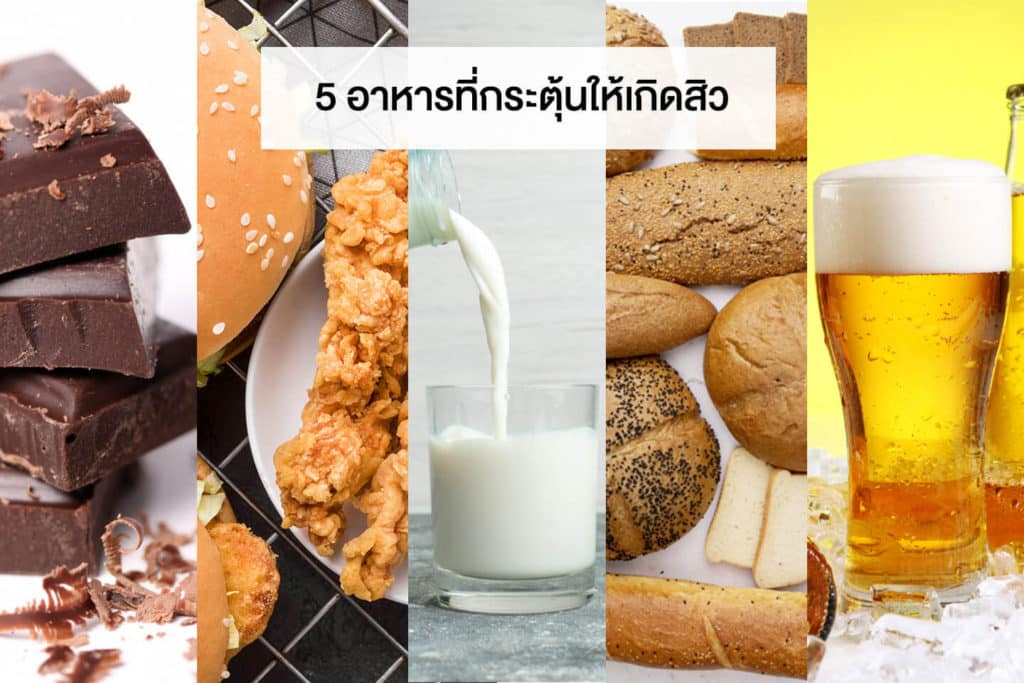 5 อาหารที่กระตุ้นให้เกิดสิว