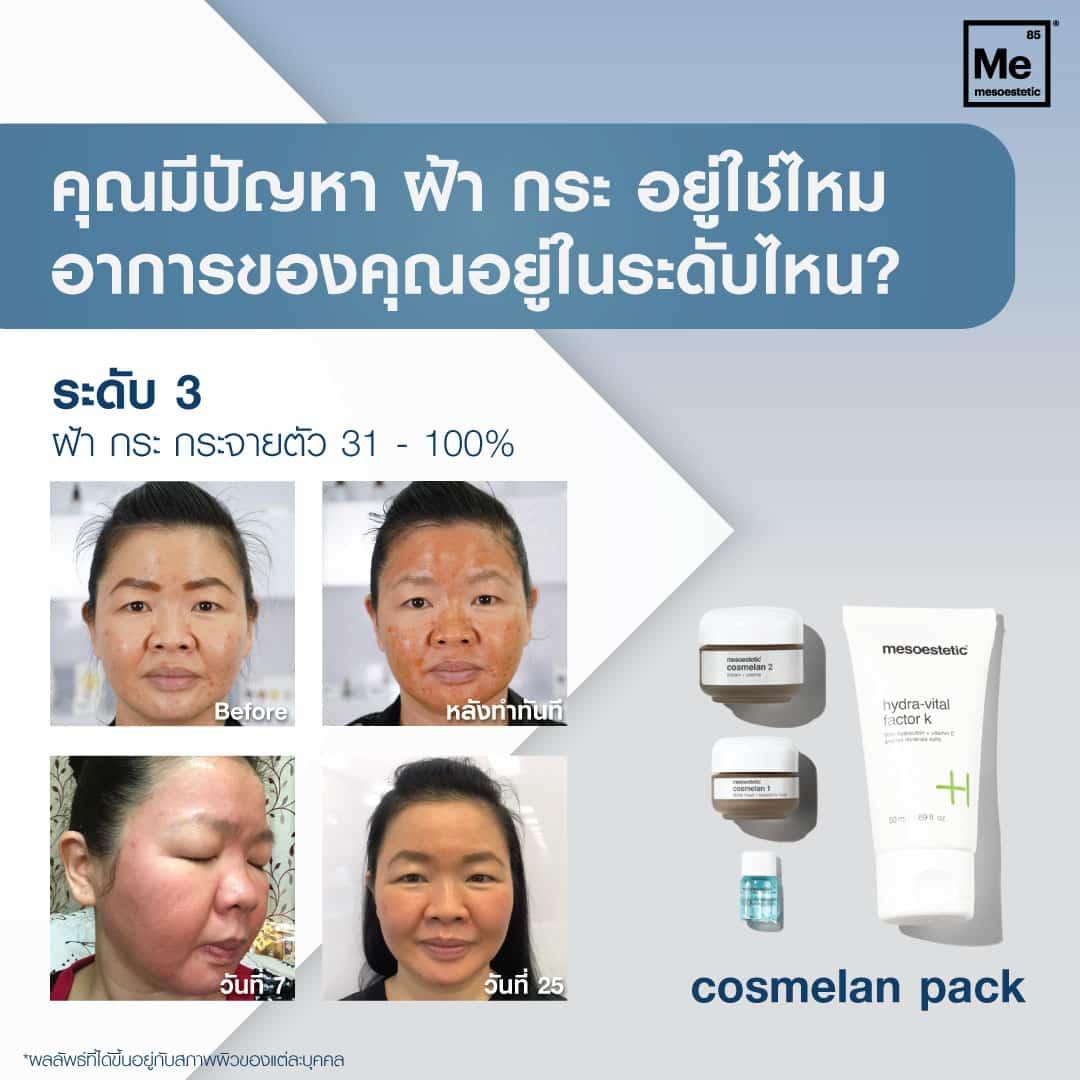 review cosmelan 3