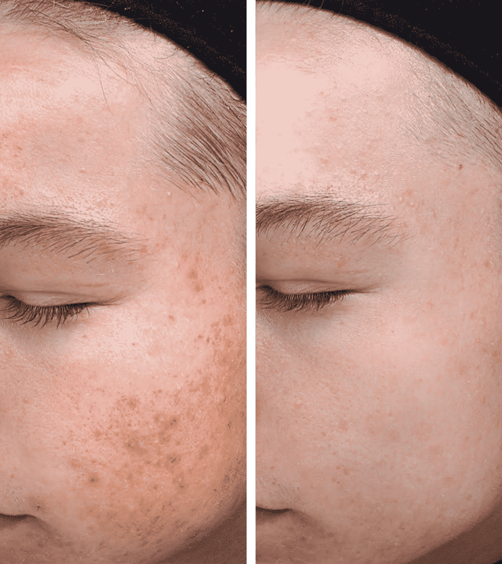Post acne marks