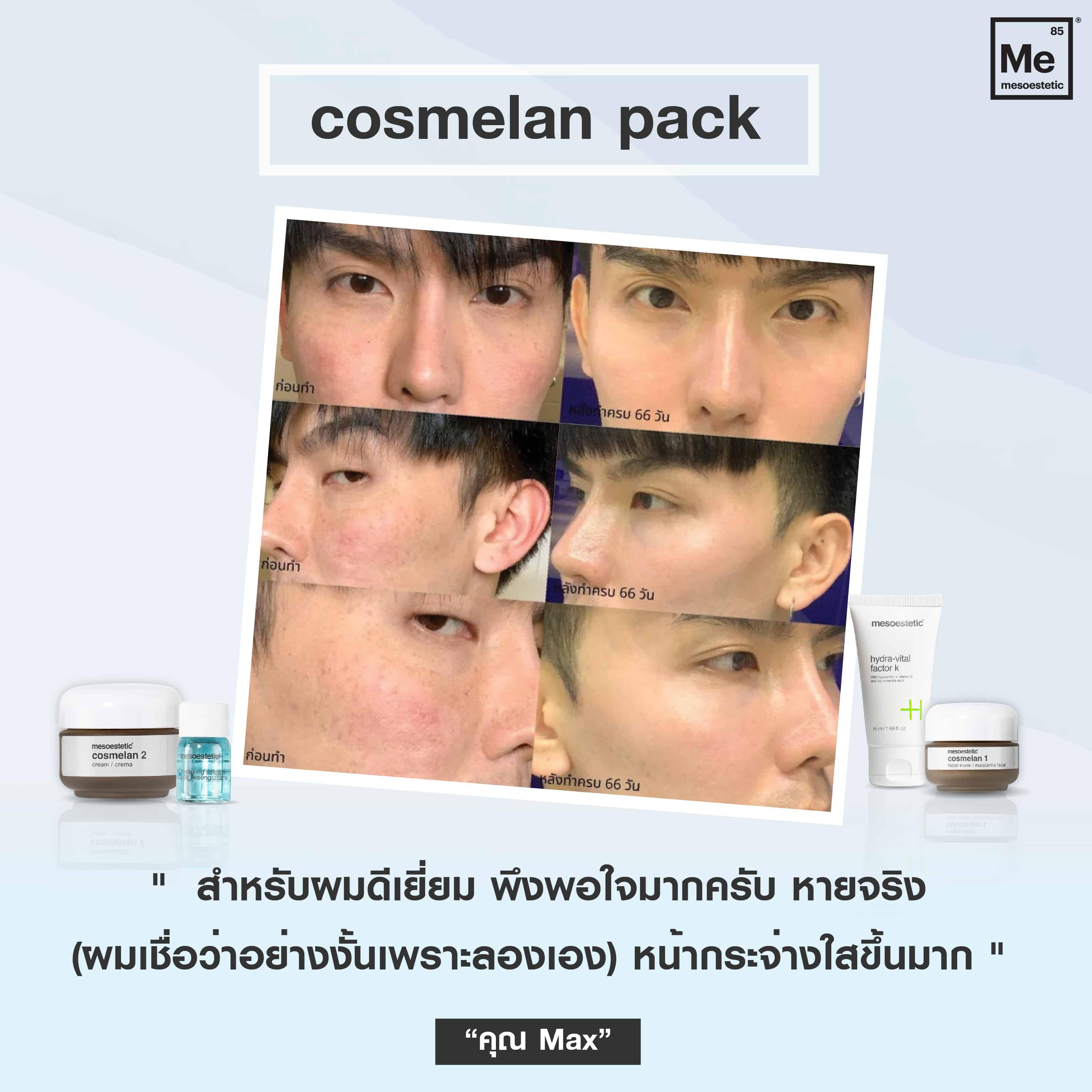 01 Review cosmelan-01