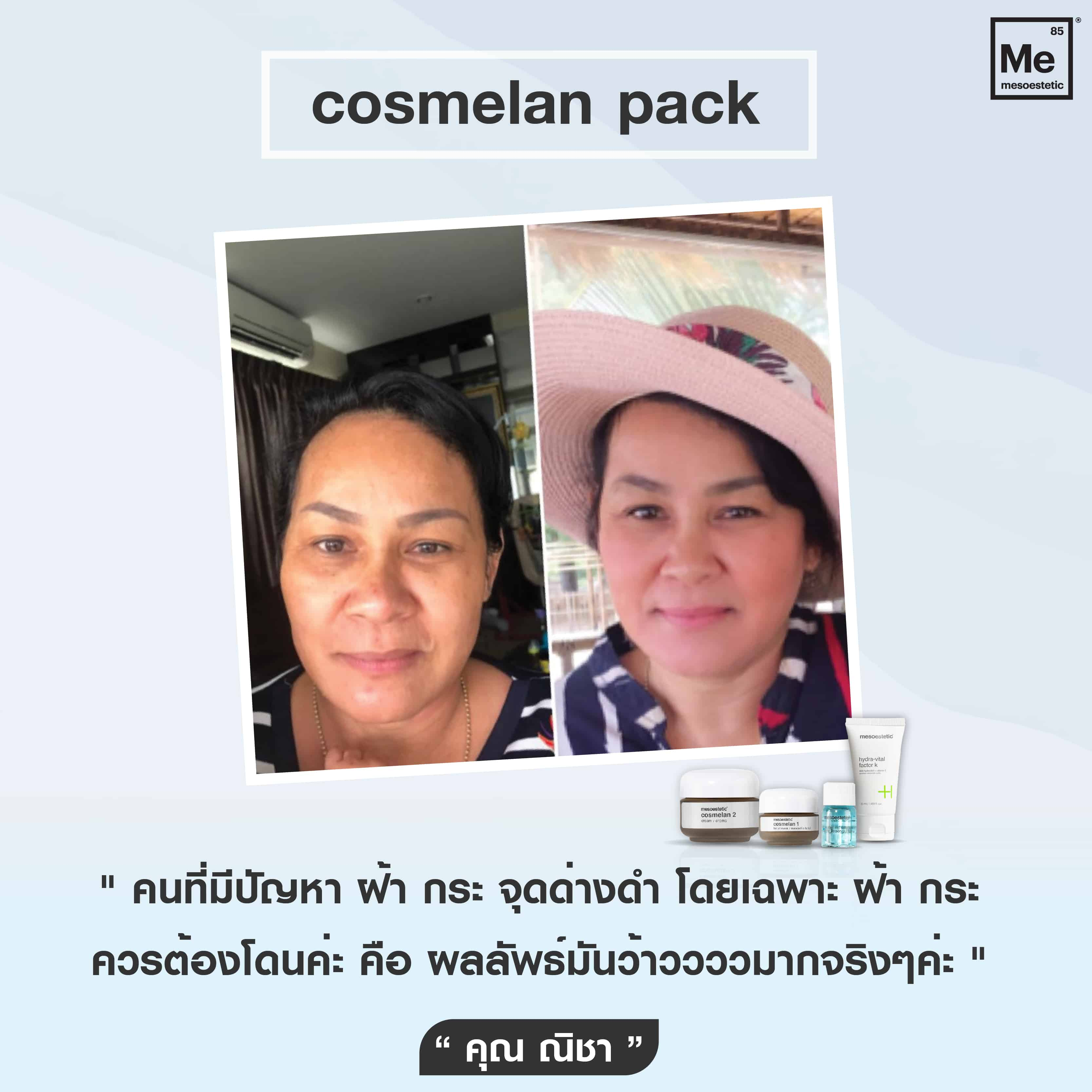 05 Review cosmelan-01