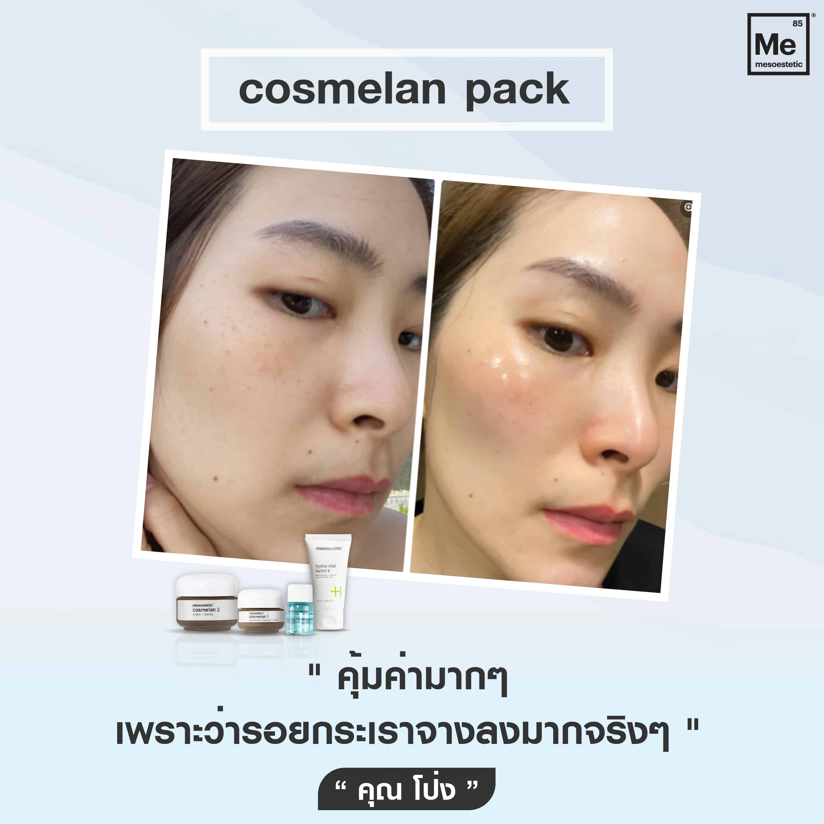 06 Review cosmelan-01