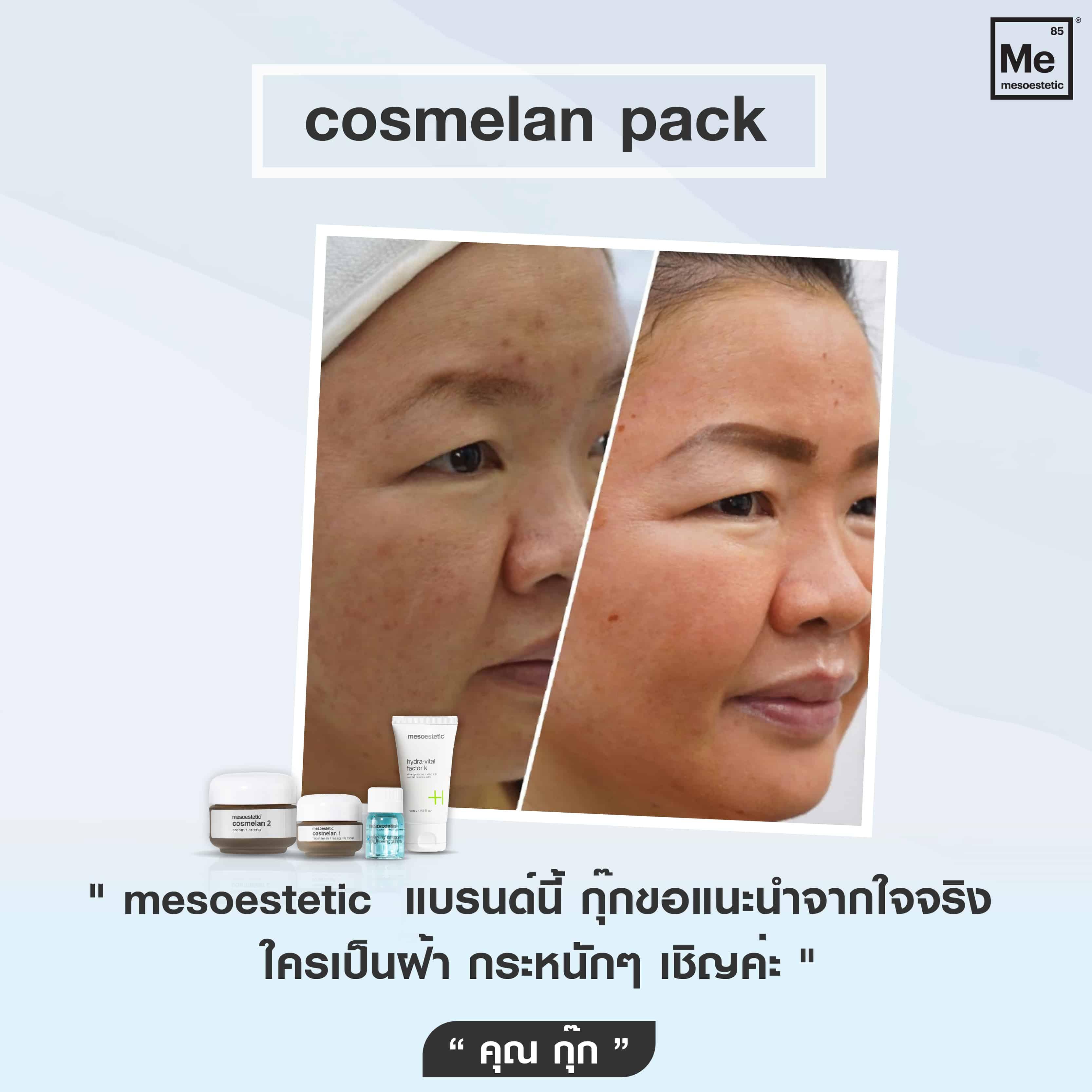 07 Review cosmelan-01
